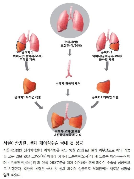 생체 폐이식 수술 모식도.