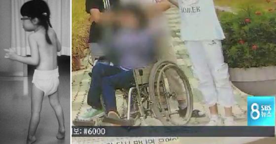 일본 소아과 의사 마사야 세가와(1936~2014년)가 생전 진단한 세가와병 환자 모습. 오른쪽은 국내에서 13년간 오진으로 병상에 누웠던 환자가 학교에 다니는 모습[중앙포토, SBS]
