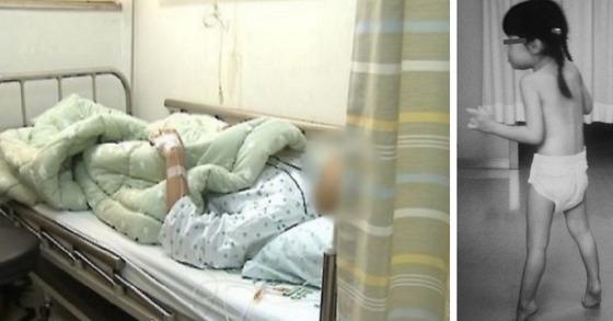 병원에 누워있는 환자. 사진은 기사와 관계 없음. 오른쪽은 일본 소아과 의사 마사야 세가와가 진단한 세가와병 환자 모습. [중앙포토]