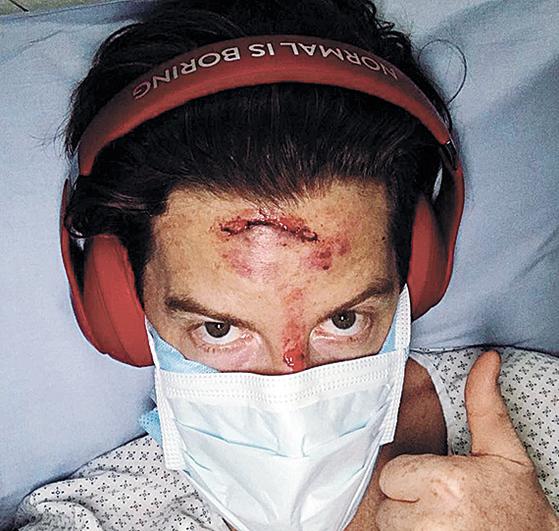 화이트가 지난 해 소셜미디어에 공개했던 부상 모습. [사진 화이트 인스타그램]