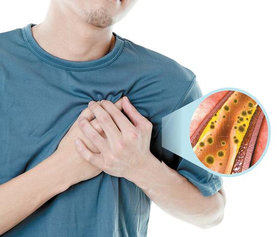 염증이 만성화하면 몸 곳곳에서 문제를 일으킨다. 서서히 혈관을 망가뜨리고 각종 염증성 질환은 물론 심뇌혈관 질환까지 유발한다.