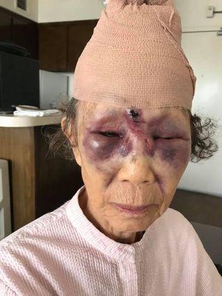 LA 한인타운에서 80대 한인 여성이 묻지마 폭행을 당했다. [사진 피해자 손녀 고유진씨 페이스북 캡쳐]