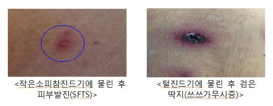 SFTS 매개 진드기에 물리면 피부 발진이 생긴다. [사진 질병관리본부]