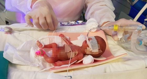 태어난 지 이틀 된 사랑이가 인큐베이터에서 집중 치료받는 모습. 안대를 차고, 인공호흡기·수액관을 달고 있다.