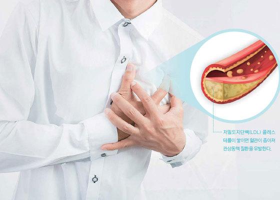 몸에 수분이 부족하면 혈액이 끈적끈적해져 혈전이 잘 생긴다. 폭염에 취약한 심혈관질환자는 평소에 물을 충분히 마시고 콜레스테롤 수치를 관리하는 게 좋다.