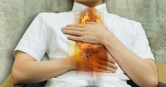 배강민 전북 남원의료원 가정의학과 전문의팀이 지난 2014년부터 2015년까지 건강검진을 받은 성인 4709명을 상대로 역류성 식도염 발병 여부와 흡연, 음주, 비만과의 관계를 조사했다. 그 결과 흡연과 음주, 비만이 역류성 식도염에 영향을 미쳤으며 남성 환자다 여성 환자에 비해 1.6배 많았다. [중앙포토]
