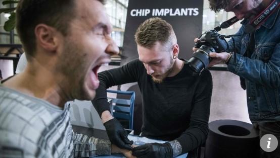 마이크로 칩을 이식하는 한 남성. [AFP=연합뉴스]