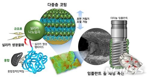 포스텍, '홍합'과 '규조류' 접착성분 이용해 임플란트 조기 회복 기술개발