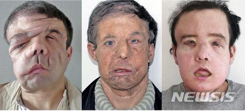 프랑스 남성,세계최초로 두 번 얼굴이식 수술 성공