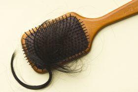 머리카락이 우수수 빠지는 탈모는 여성도 예외가 아니다. [중앙포토]
