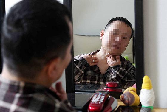 3년 전 설암 수술을 한 진기수씨가 거울을 보며 목에 이상이 없는지 살피고 있다. 입안 염증, 목의 혹은 두경부암의 증상일 수 있다. [김상선 기자]