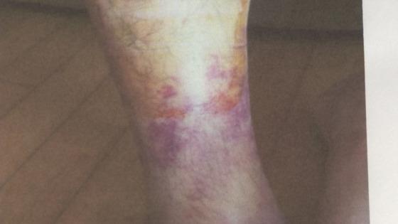 부산대병원 전공의들이 정형외과 A교수(38)에게 폭행 당해 입은 상처. [사진 JTBC]
