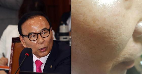 박덕흠 자유한국당 의원과 그가 맞았다고 주장한 오른쪽 뺨. [중앙포토]