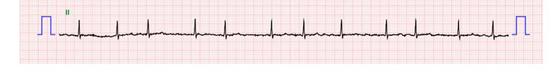 심방세동 환자는 심장리듬 간격이 일정하지 않고 불규칙해 갑자기 빨리 뛴다. 뇌졸중 위험이 높아 항응고제를 반드시 복용해야 한다. [사진 중앙포토]