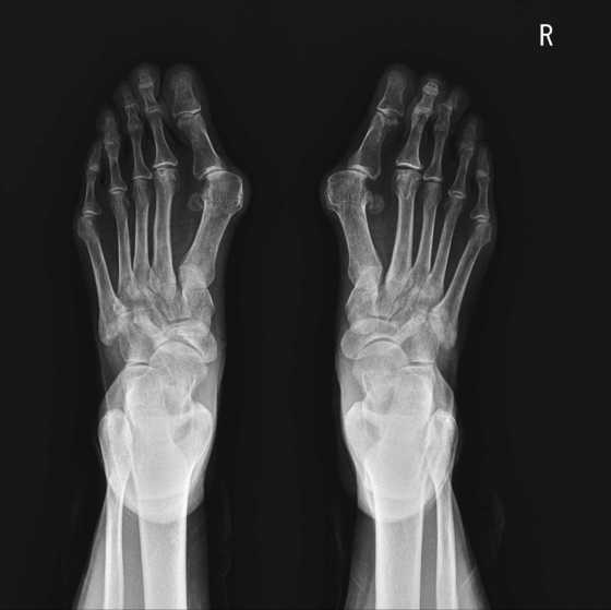 무지외반증은 엄지발가락이 새끼발까락쪽으로 휘면서 관절이 바깥쪽으로 튀어나와 통증을 유발하는 질병이다. [중앙포토]