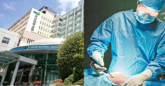 기사 내용과 수술 사진(오른쪽)은 관계 없음. [사진=부산대병원 자료집, 중앙포토]