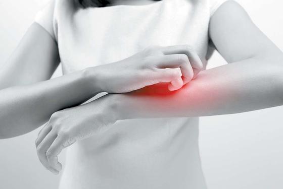 만성 특발성 두드러기는 아직 잘 알려지지 않은 질환이므로 대학병원급 의료기관에서 알레르기내과 혹은 피부과 전문의에게 진단·치료받기를 권한다.