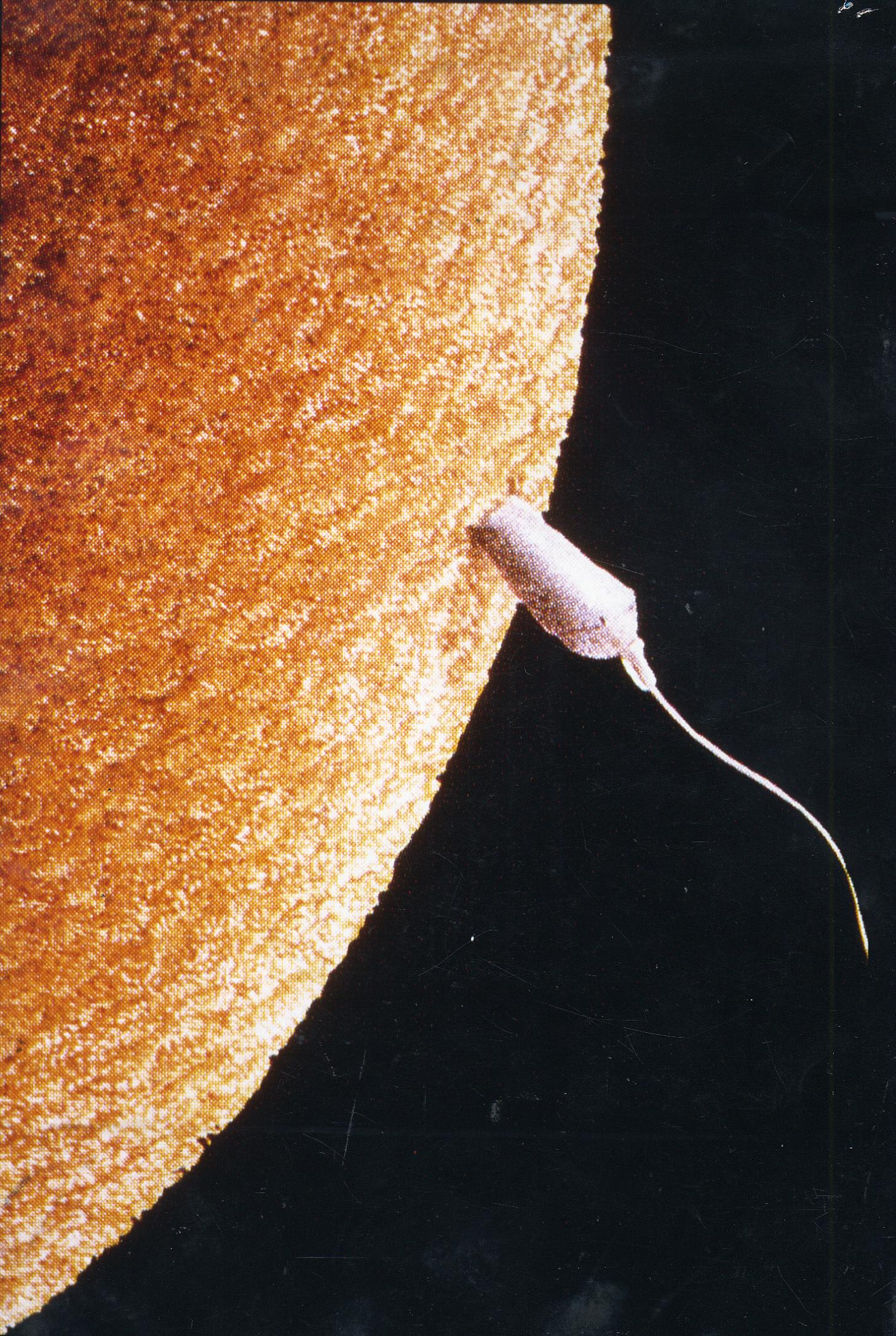 일생의 건강이 유전적으로 결정되는 정자와 난자의 수정순간을 주사 전자현미경으로 포착한 모습이다.[중앙포토]