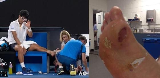 호주오픈 4강전에서 메디컬 타임아웃을 부르고 발바닥 치료를 받고 있는 정현. 오른쪽 사진은 오른쪽 발바닥 상태. 왼쪽 발바닥은 더 심하다. [사진 JTBC]
