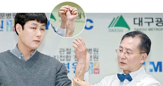 우상현(오른쪽) W병원장이 지난 2일 병원에서 열린 국내 최초 팔 이식수술 1주년 기념 경과 설명회에서 수술을 받은 환자의 손을 들어보이고 있다. 동그라미 안은 이식수술한 팔 안쪽 부위. [뉴스1]