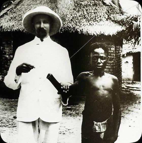 벨기에 레오폴드2세는 콩고를 지배하면서 지옥으로 만들었다. 당시 세계적으로 수요가 폭증한 고무 생산을 늘리기 위해, 콩고 원주민에게 할당량을 지정하고 이를 맞추지 못하면 손목을 잘랐다. 1900년 무렵 콩고에서 촬영된 이 사진은 그의 잔혹한 지배를 한 눈에 보여준다. [중앙포토]