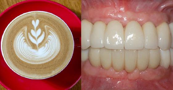 커피를 매일 한잔 이상 마시면 치아상실 위험이 높아진다는 연구 결과가 나왔다. [중앙포토]