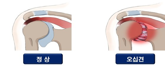 단순한 어깨 결림과 다르게 오십견(五十肩)은 팔을 올리거나 돌릴 때 통증이 훨씬 심하다. [중앙포토]