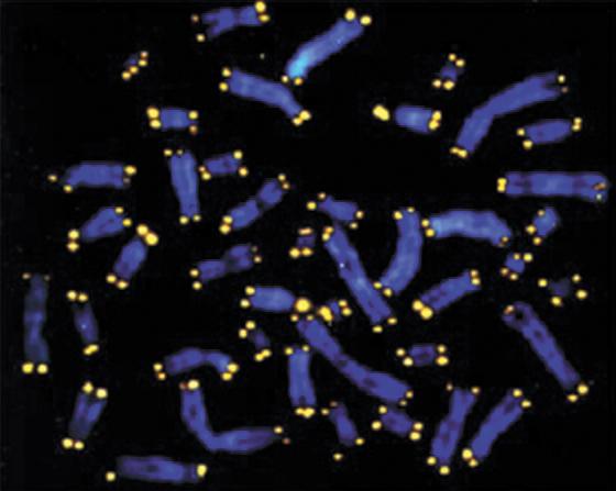 세포의 염색체 끝의 형광색 부분이 텔로미어다. 텔로미어 길이가 길수록 노화 속도가 늦다. [중앙포토]
