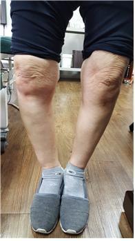 무릎이 아프신 할머니. [사진 유재욱]