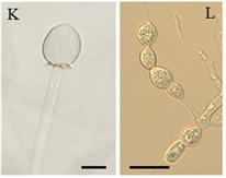 지난해 광주 무등산 계곡에서 발견된 신종 담수균류 뮤코 플루비우스 (Micor fluvius) [자료 낙동강생물자원관]