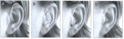보청기는 형태와 크기에 따라 종류가 다양하다. 왼쪽부터 귀걸이형· 귓바퀴형·외이도형·고막형 보청기 [사진 서울아산병원]