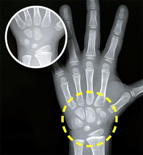 성조숙증에 걸리면 여성호르몬이 과다 분비돼 뼈가 비정상적으로 빨리 자란다. 이 병에 걸린 4세 여아(오른쪽 사진)의 손목 근처 손바닥뼈가 7개로 정상 여아(작은 사진)보다 3개나 많고 크다. 뼈나이로는 7세에 해당한다. 뼈나이가 빠르면 나중에 키가 덜 자란다.