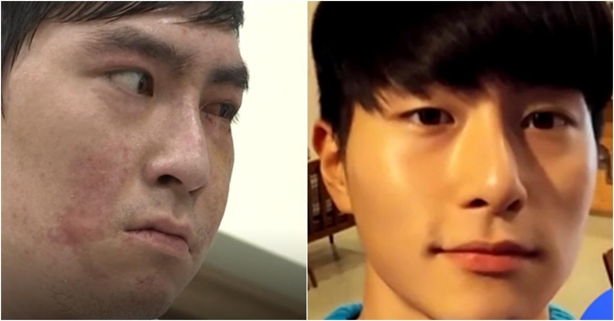 이찬호 병장 K-9 자주포 폭발사고 후(왼쪽)와 전. [사진 JTBC 방송 캡처]