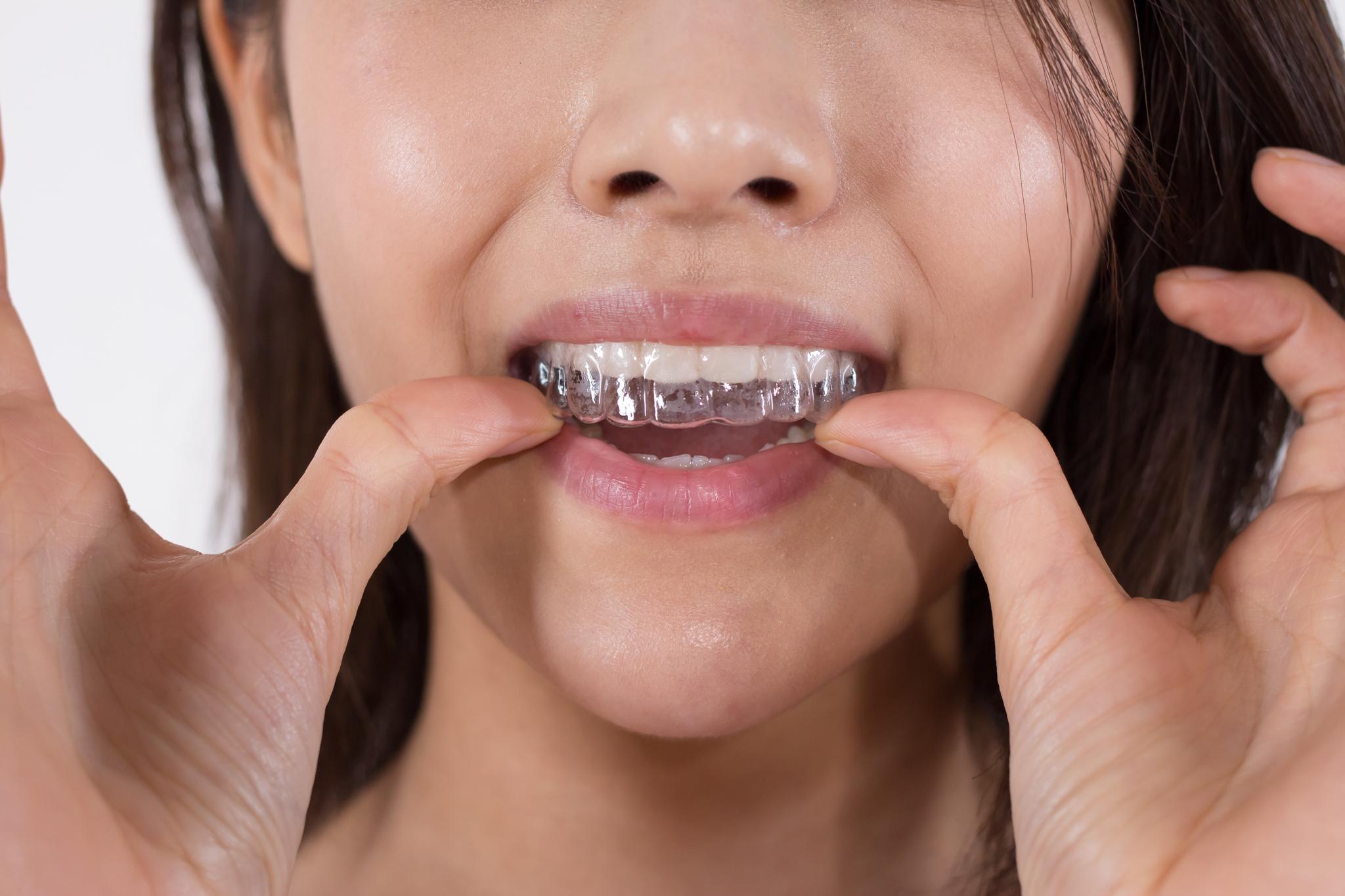 치아교정. (※이 사진은 기사 내용과 직접적인 관련이 없습니다) [중앙포토]