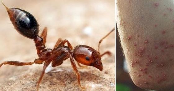 독을 갖고 있는 붉은불개미(왼쪽)와 붉은불개미에 물렸을 때의 모습.불에 데인 것 같은 통증이 있다고 해 불개미라 한다. [중앙포토]