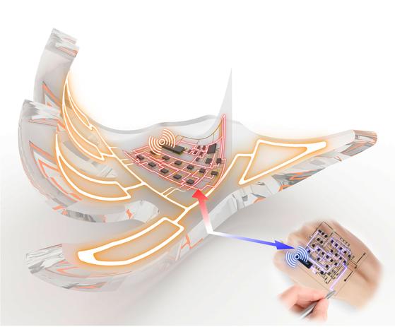 컴퓨터 그래픽으로 구현한 전자피부. 한 쌍으로 이뤄져 블루투스나 RFID를 이용한 무선통신과 이를 이용한 구동도 할 수 있다. [사진 서울대학교]