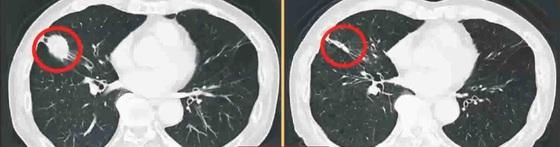 폐암 치료 전(왼쪽)과 치료 후(오른쪽). 폐암 환자의 CT 사진.