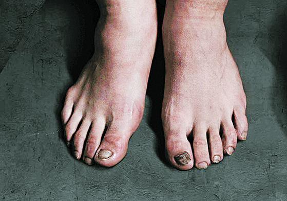 한국축구대표팀 에이스 손흥민의 울퉁불퉁한 발. [중앙포토]