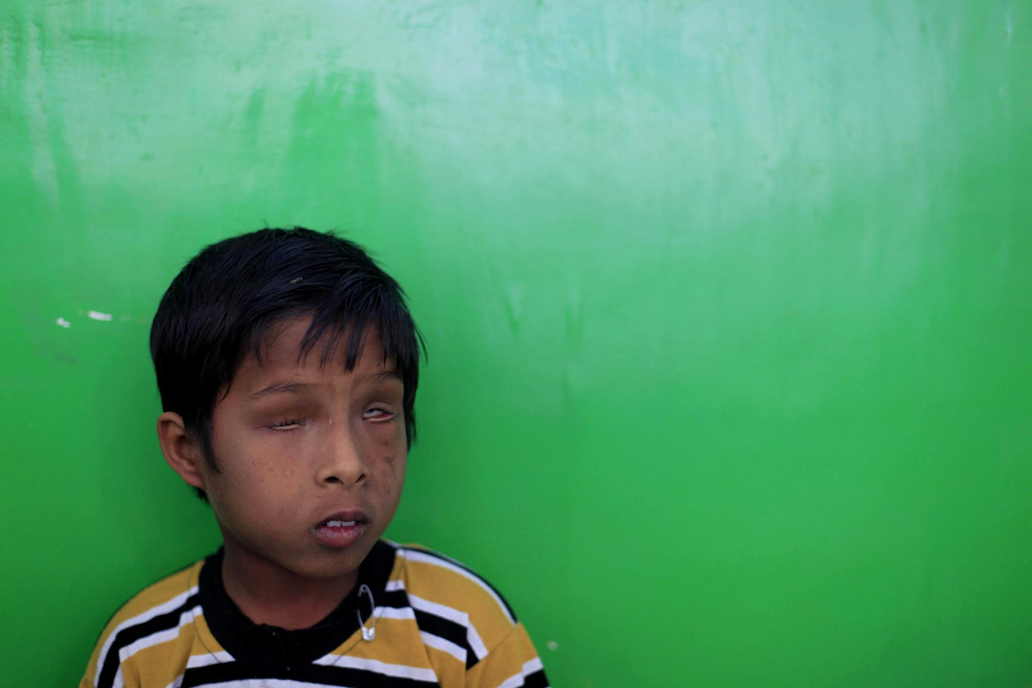 1984년 보팔 참사 이후 태어난 2세대 피해자. 2012년 당시 이 어린이는 7살이었다. [중앙포토]