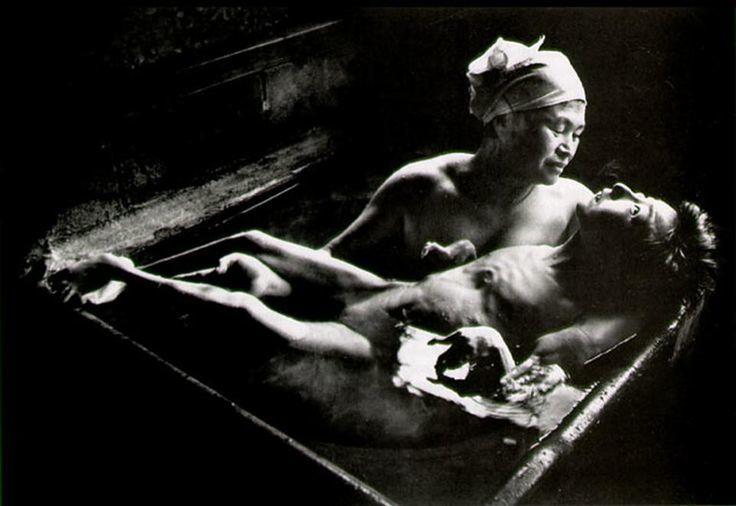미나마타 병의 참상을 보여주는 사진 [중앙포토]
