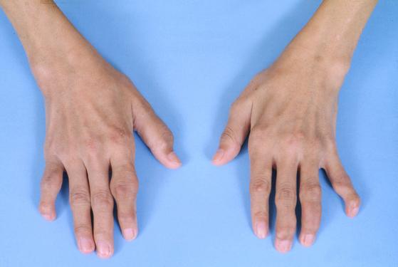류마티스 관절염으로 변형된 손의 모습