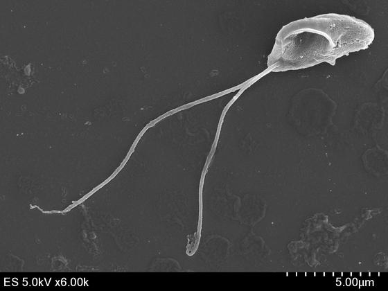 경북대 박종수 교수와 국립생물자원관 공동 연구팀이 찾아낸 호염성 편모충류 '오렘 하이퍼살리나'의 주사 전자현미경 사진 [사진 국립생물자원관]