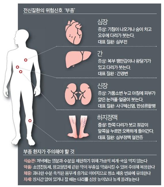 [건강한 당신] 다리·얼굴 '퉁퉁' 숨이 '턱턱'…심부전·간경변·콩팥병 적신호죠