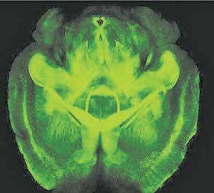 광학현미경을 이용해 만든 투명 뇌지도. 신경세포 하나하나가 보인다.
