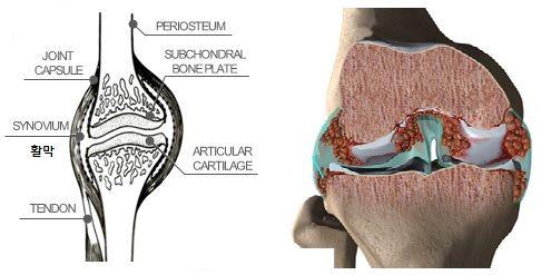 정상적인 관절(좌)과 류마티스 관절염 환자의 관절(우). 류마티스 환자의 관절과 관절 사이(활막)에는 활막 세포가 증식하고 있다. [사진 김완욱 가톨릭대 교수]