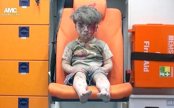 시리아 알레포 공습으로 무너진 건물에서 구조된 5살 소년 옴란 다크니시