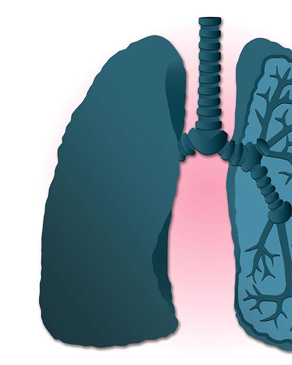 [라이프] 노인 폐렴은 기침·발열 없어 … 자칫 '골든 타임' 놓친다