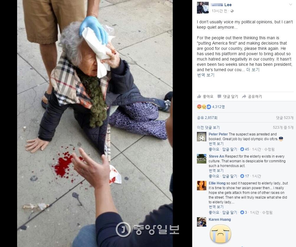 미국 로스앤젤레스에서 한국인 할머니가 백인 여성에게 길거리에서 폭행당하는 사건이 벌어졌다. [사진=페이스북]