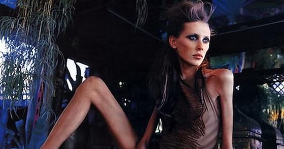 거식증으로 2010년 숨진 프랑스 모델 이사벨 카로. [중앙포토]