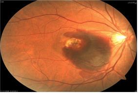 고령화와 만성질환의 증가로 망막질환을 앓는 환자가 늘고 있다.망막질환의 일종인 황반변성으로 눈 안에 출혈이 발생한 환자 사진.[사진 국민건강보험공단]